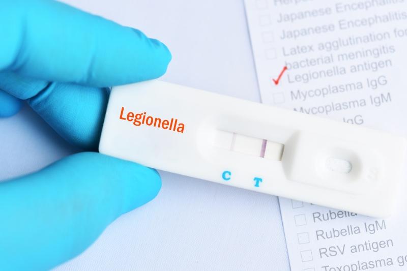 Legionella: cos'è, prevenzione e analisi